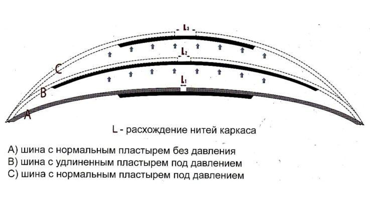 Механизм появления грыжи